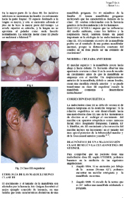 Terapia con máscara facial