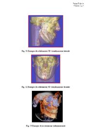 La radiologia volumetrica in odontoiatria. Applicazioni cliniche