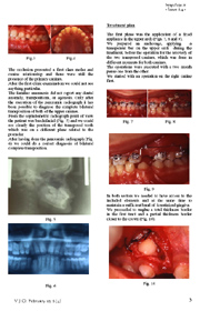 Doble transposition canine-premolar. Case Report