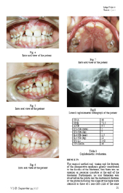 Unilateral Cleft Palate, a case report.