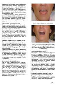 Strategie terapeutiche miste nel morso aperto anteriore. Parte seconda: l'apparecchio funzionale di B.Bonnet (ELN)