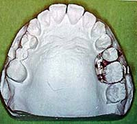 Posterior intrusion with magnets supported by osseointegrated implants