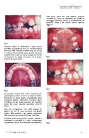 La distalizzazione dei primi molari mascellari con l'Ac.C.O. modificato: Case Report