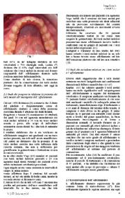 Terzi molari ed ortodonzia: Estrazione meditata o sistematica?
