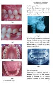 Mesialización de un segundo molar inferior sustituyendo un primer molar: Presentación de un caso clìnico ortodóntico