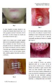 Lesiones fáticas por tratamiento ortodóntico