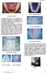 La extracción de un incisivo inferior como alternativa de tratamiento en apiñamientos