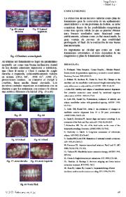 Estrazione dell'incisivo inferiore come alternativa di trattamento nell'affollamento