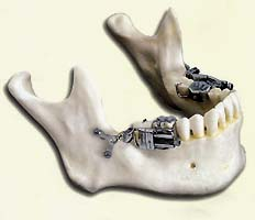 Skeletal Distraction for Mandibular Lengthening with a Completely Intraoral Toothborn Distractor