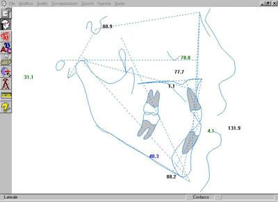 L'esame cefalometrico computerizzato. Valutazione comparativa tra due metodiche di acquisizione.
