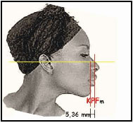 A well known modified lower face profile analysis for all ethnic types and its contribution to cephalometric skeletal classes