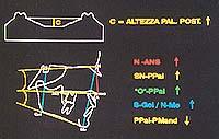 Correlations between morphologic palatal dimensions and the cranio-facial balance